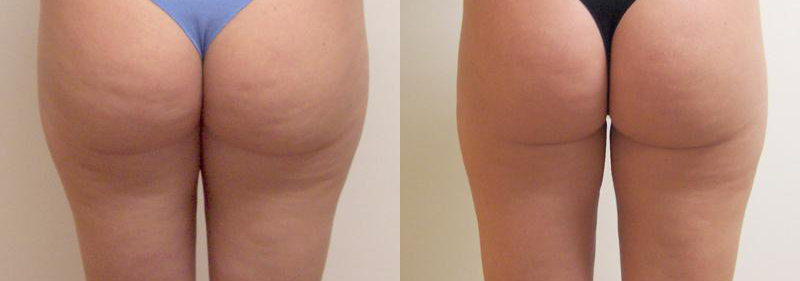 VelaShape® Before and After