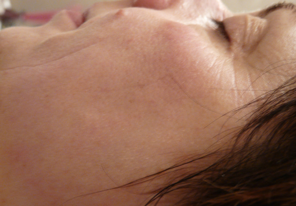 BDR Microneedling After