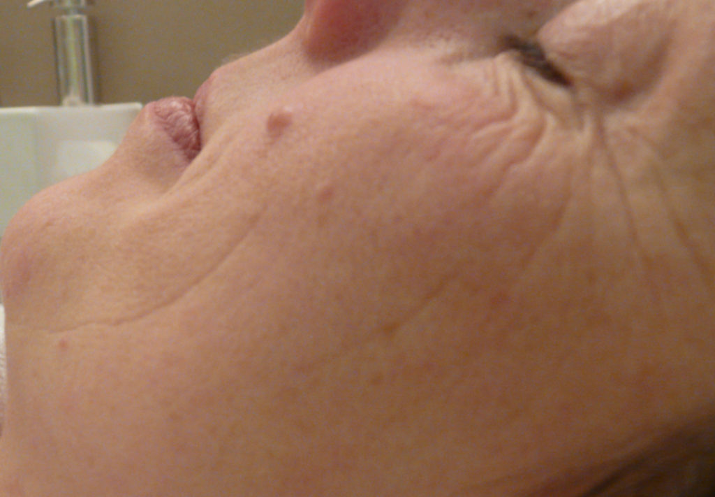 BDR Microneedling Before