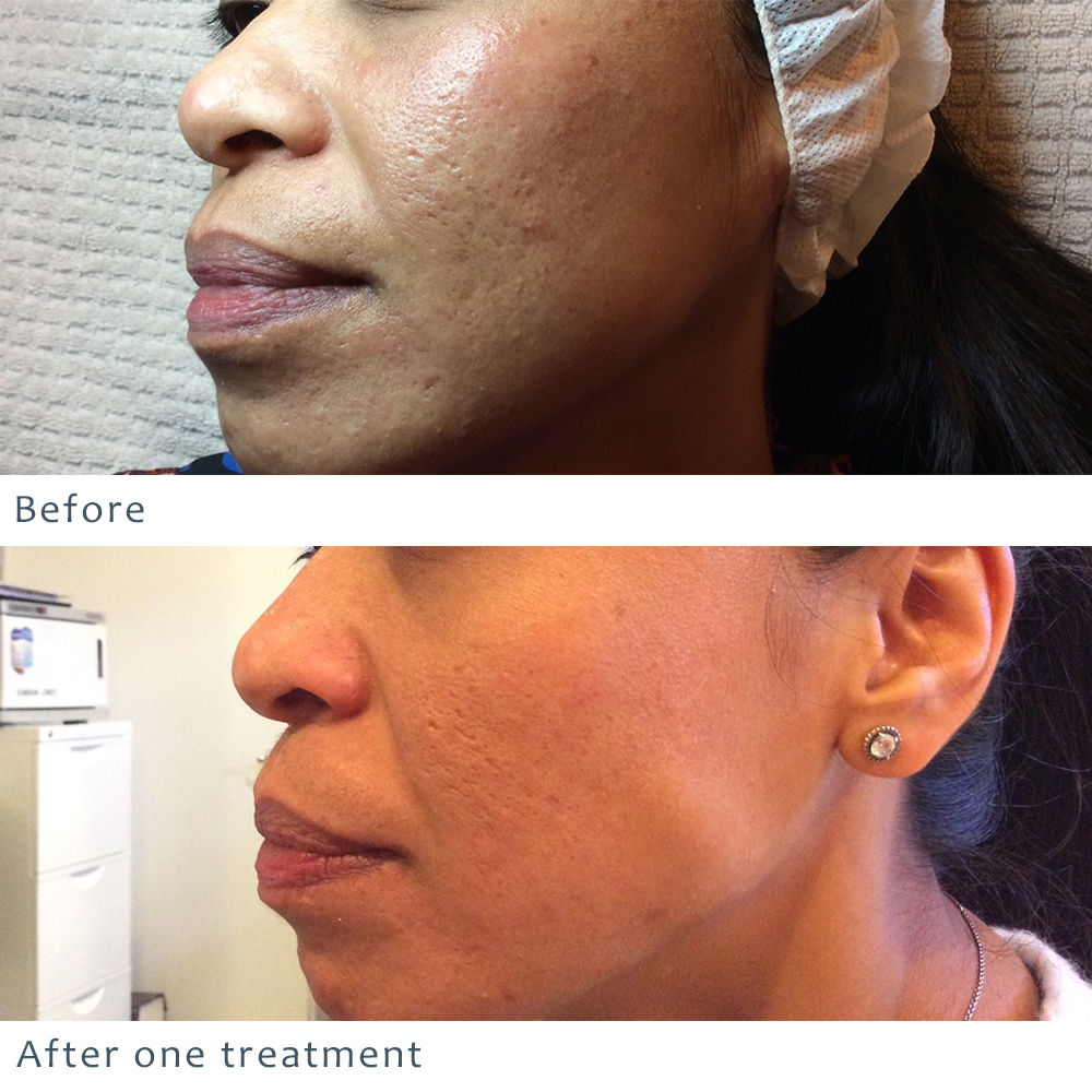 eMatrix, Sublative rejuvination, before and after
