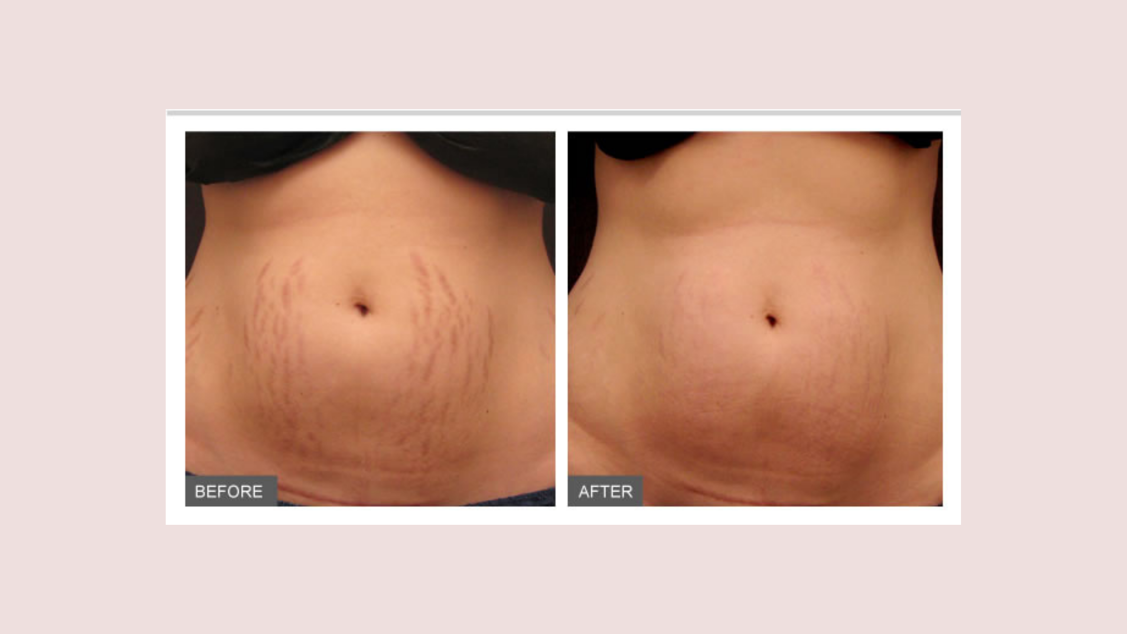 Stretch Marks before and after RF Microneedling