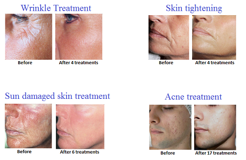 BDR Microneedling Before and After