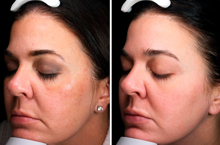 Before and After Chemical Peel Results