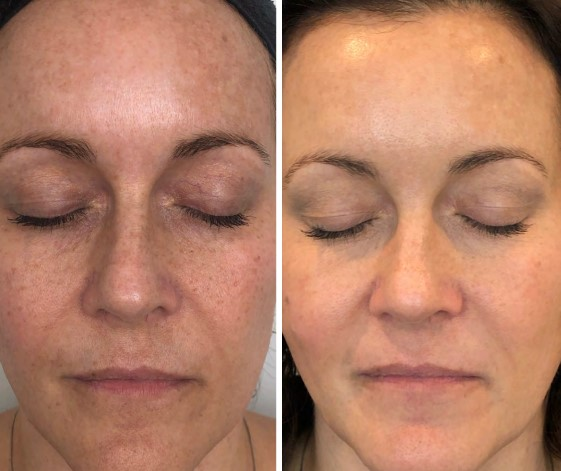 Before and After a Chemical Peel